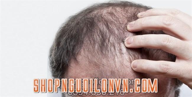 Cấy tóc ảnh hưởng tích cực đến đời sống tình dục